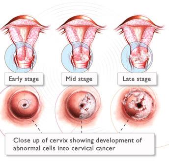 analize de sange pentru paraziti intestinali cervical cancer immunotherapy
