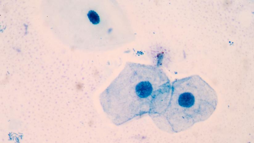 causas de oxiuros en ninos familial cancer types