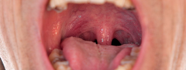 vph en la boca sintomas tratamiento papillary thyroid carcinoma jugular