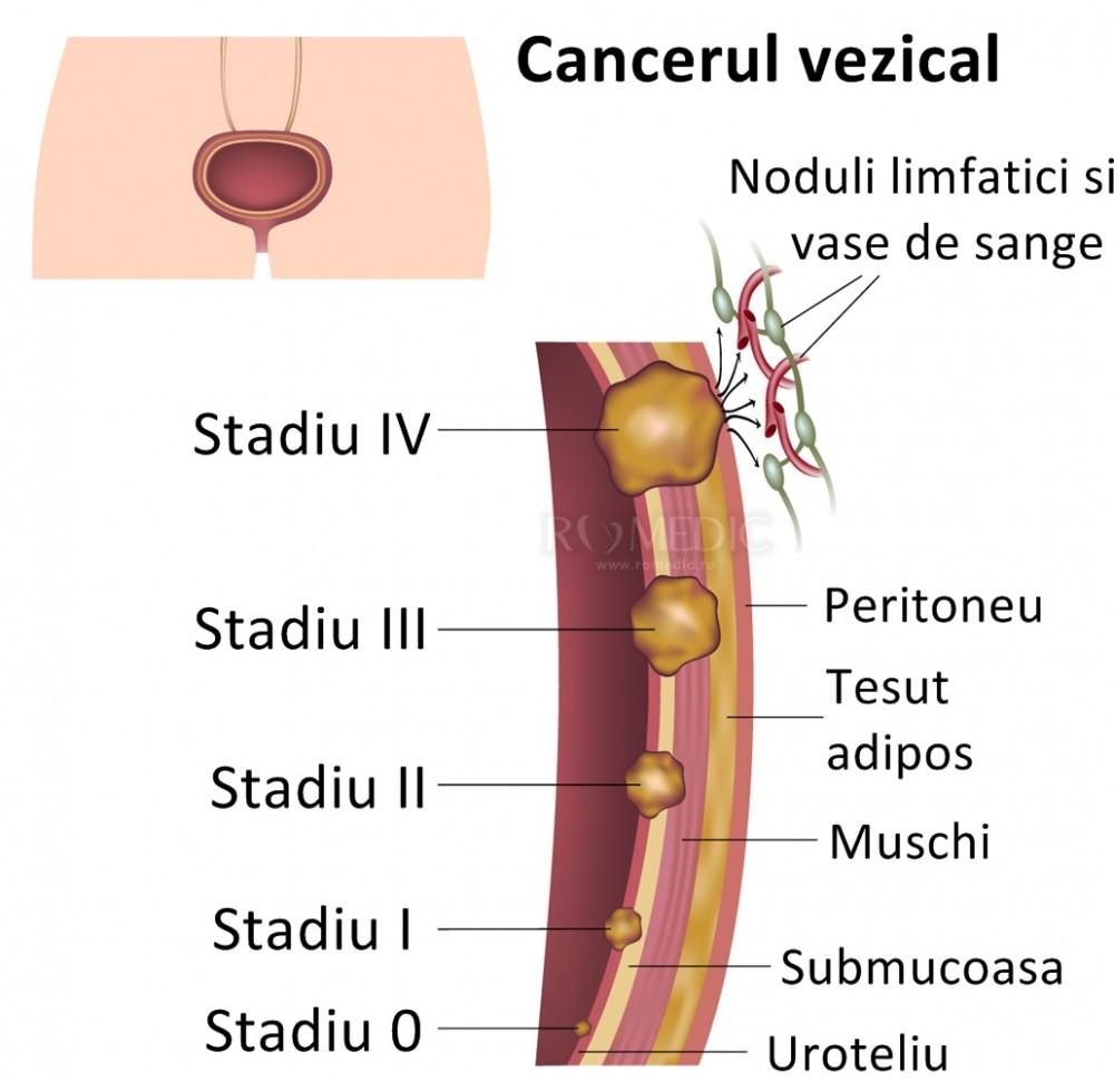 tumora maligna vezica urinara