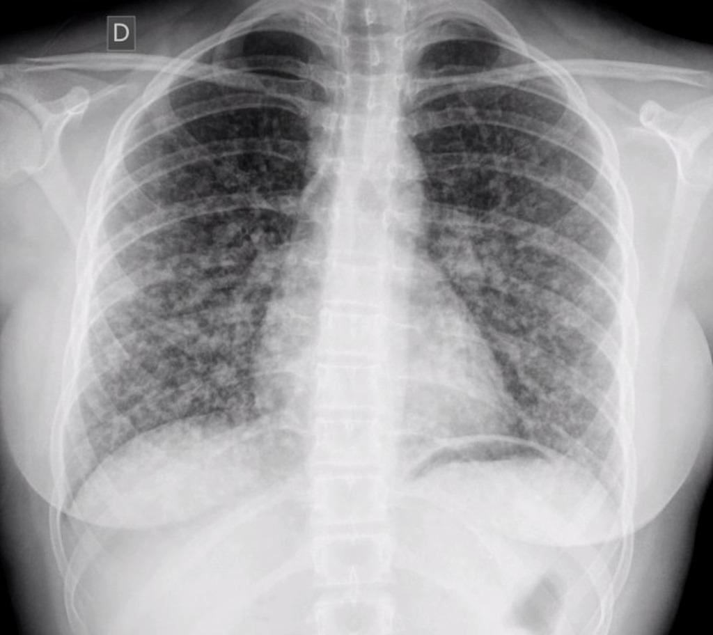 papillary thyroid cancer metastasis to lung symptoms