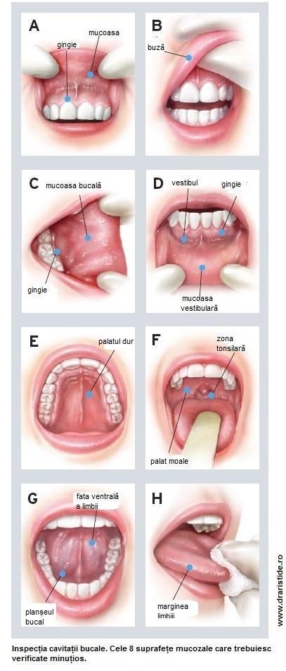 Cancer bucal. Simptome si factori de risc predispozanti   dr. aristide