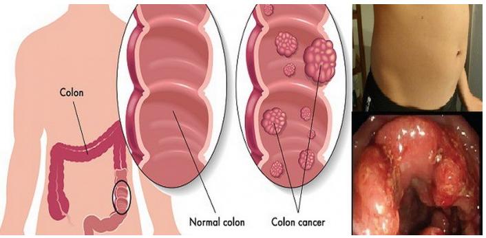 cancerul de colon la barbati simptome detoxifierea ficatului alimente