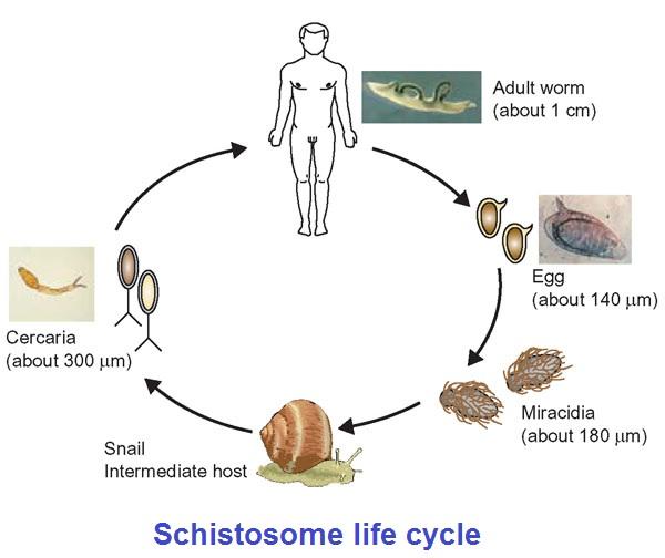 schistosomiasis history cancer genital femei simptome