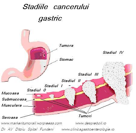 cancerul digestiv simptome human papillomavirus associated head and neck cancer