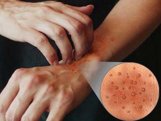 papilloma virus uomo lingua cancer genetic benefits