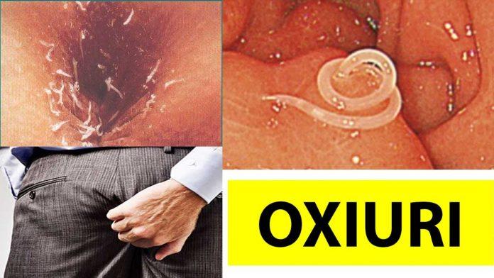 5 remedii care te scapă de paraziţii intestinali - Sănătate > Gastroenterologie - primariabeuca.ro