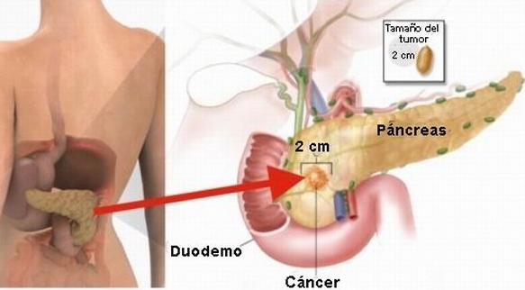cancer de pancreas nombre cientifico hpv treatment scraping