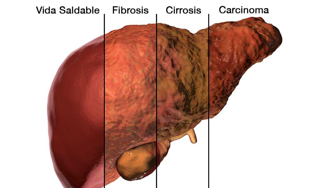 cancer celula hepatica