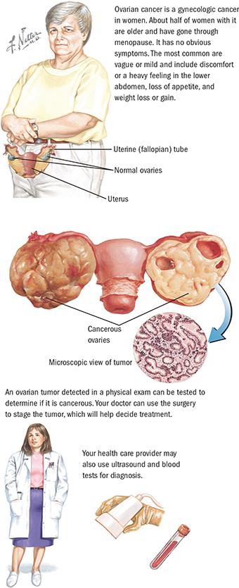 sirop contra viermilor intestinali