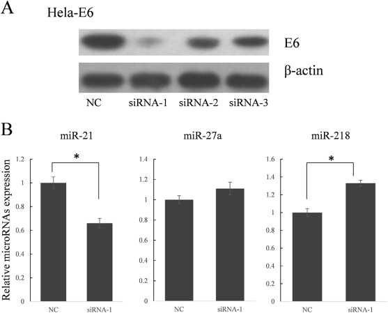 human papillomavirus 16 e5 modulates the expression of host micrornas
