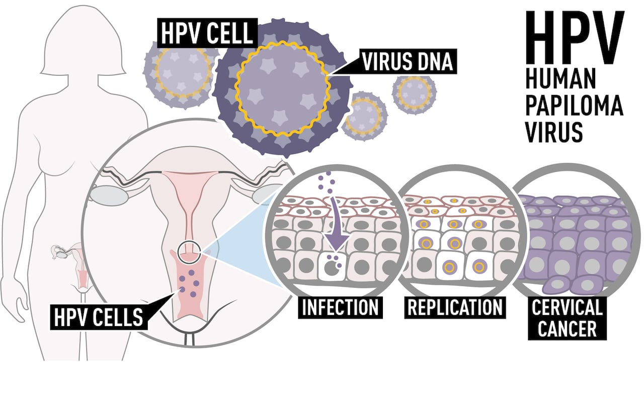 human papillomavirus associated head and neck cancer