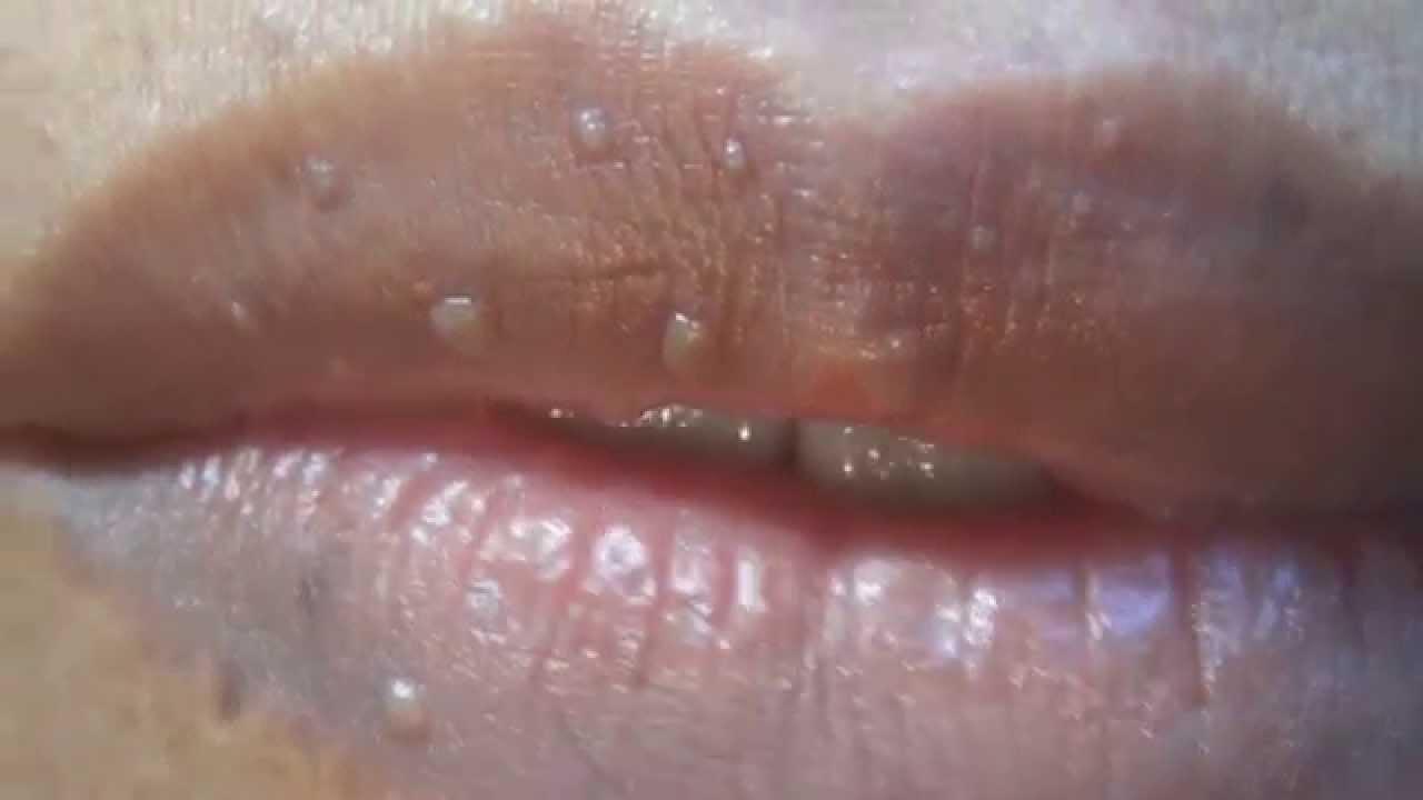 papiloma en los labios dela boca