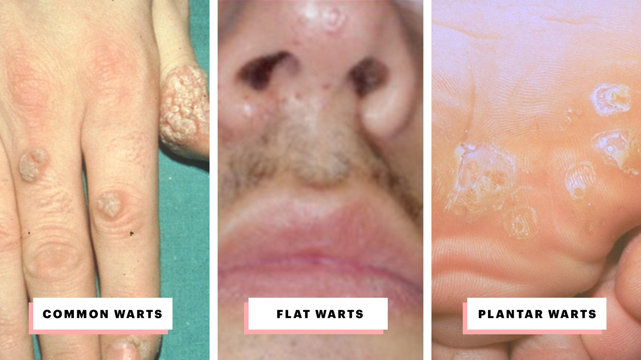 papillomavirus warts treatment