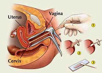 differenza tra pap test e papilloma virus