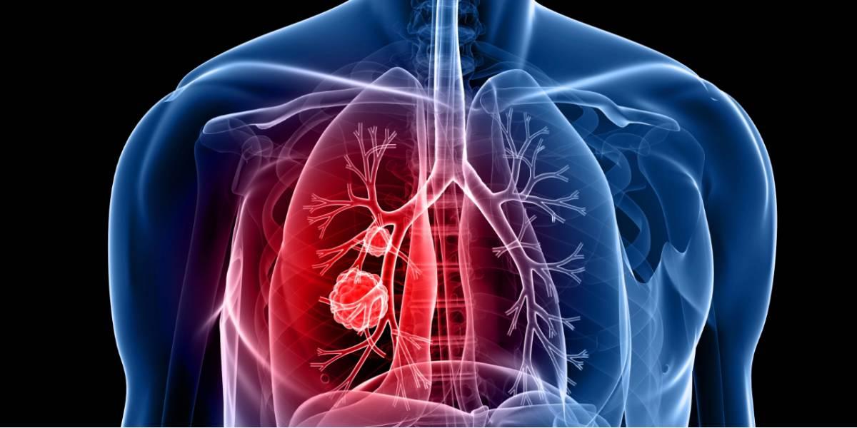 cancer pulmonar fara celule mici