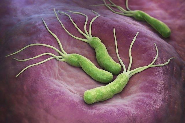 Helicobacter pylori, bacteria care îmbolnăveşte stomacul a milioane de români