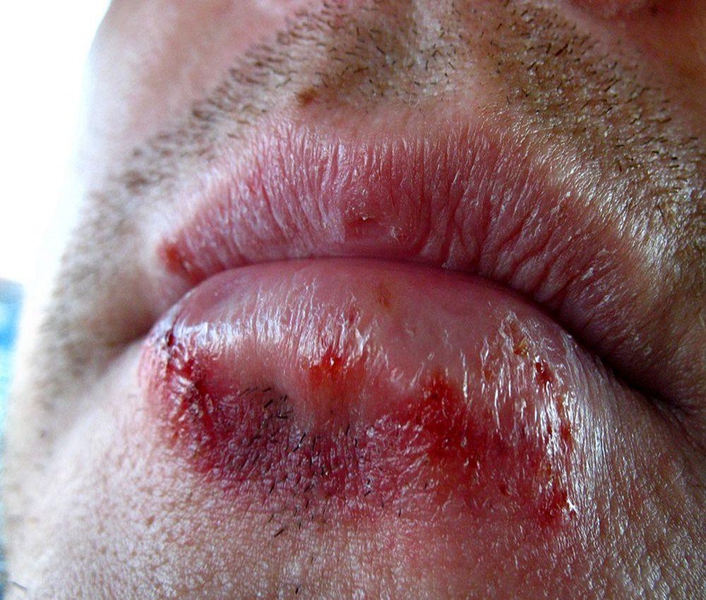 hpv herpes boca
