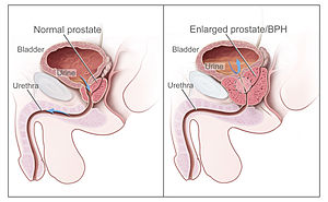 cancer de tiroide icd 10