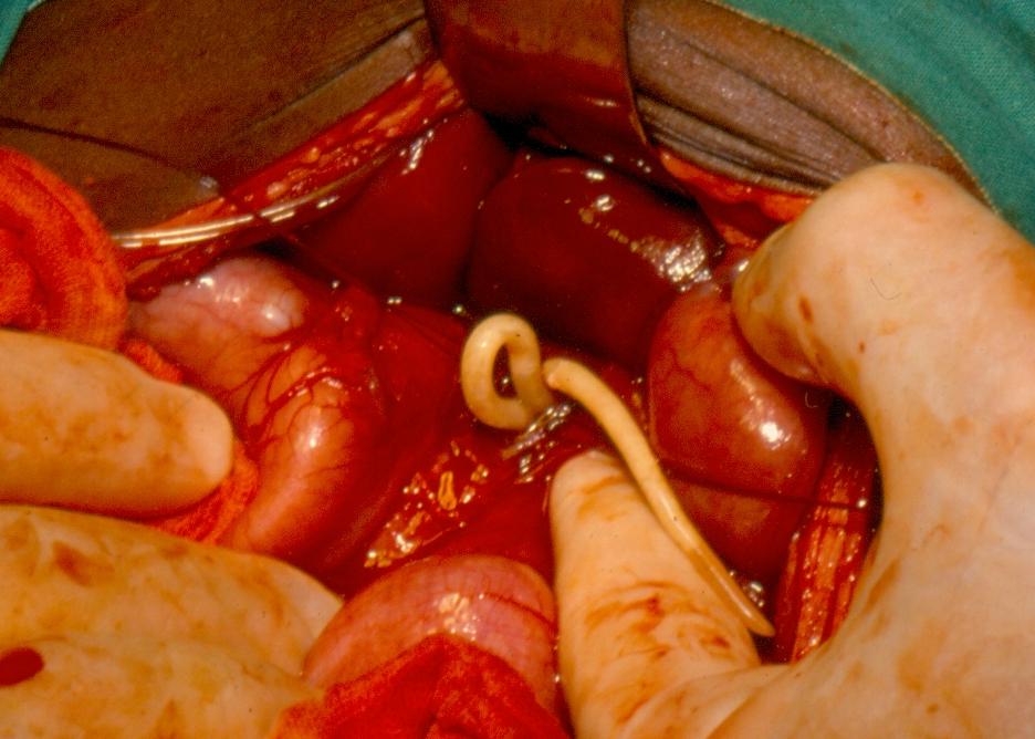 helminth infections definition simptome cancer colon femei