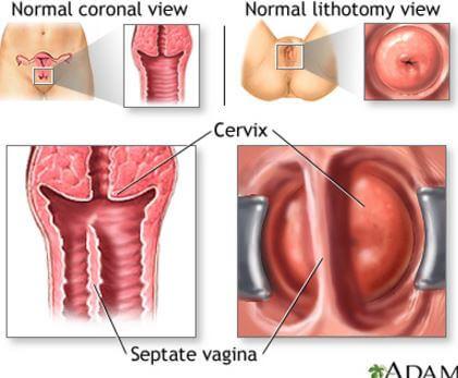 papillomas in bladder