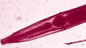 virus human papillomavirus adalah paraziti v akvariu na skle
