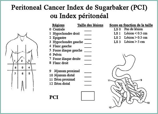 PROFILUL CARCINOMATOZELOR PERITONEALE ÎN ADENOCARCINOAMELE PANCREATICE - PDF Free Download