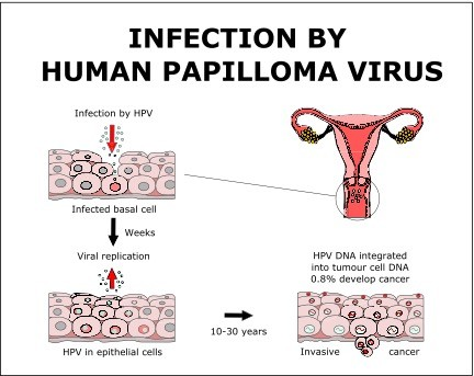 how to get rid of hpv virus in the body