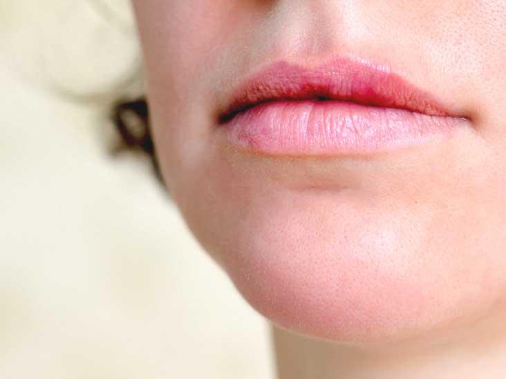wart on mouth lips