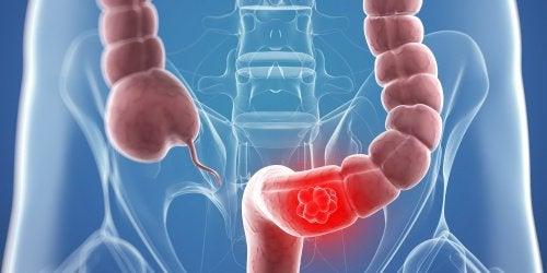 O abordare multidisciplinară în tratamentul cancerului renal și a trombozei