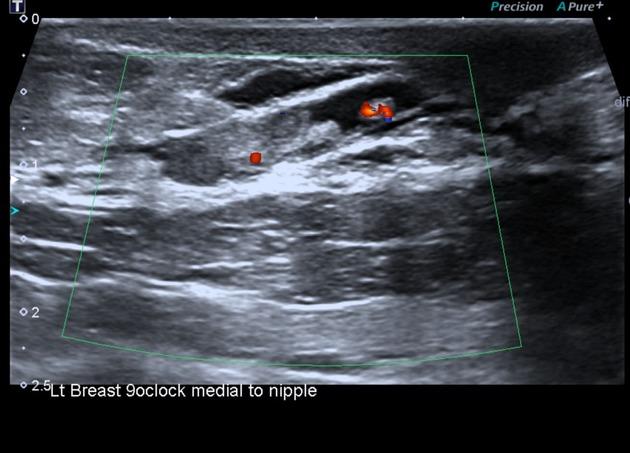 papillomas in breast tissue cancerul de piele definitie