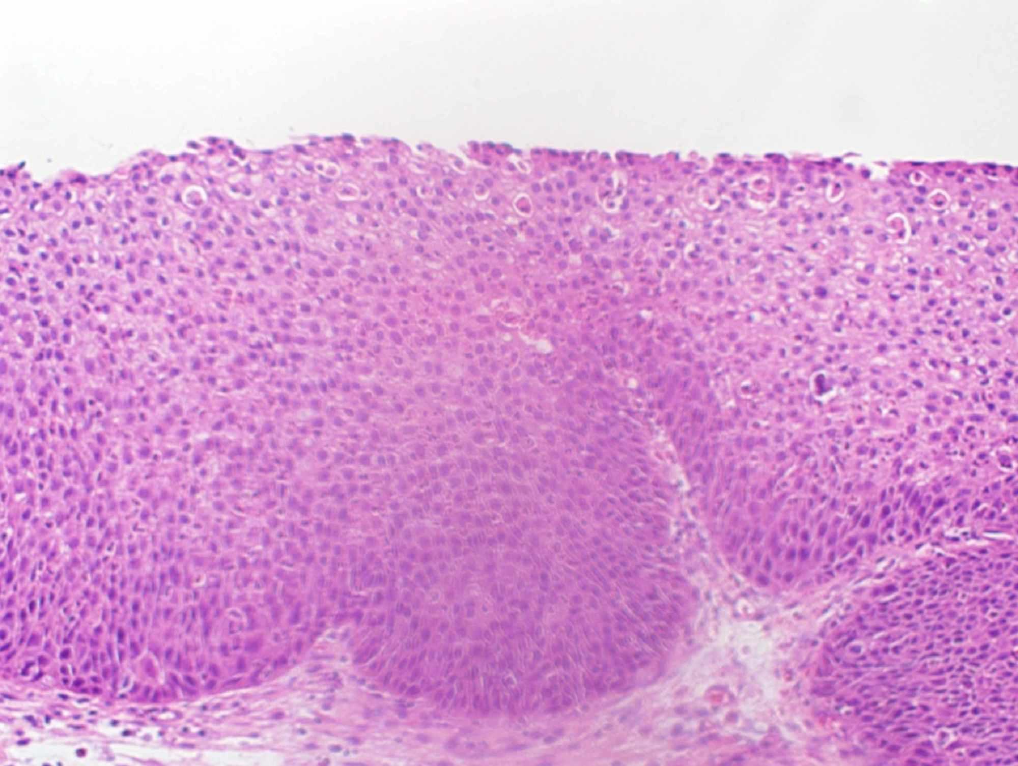 treatment for sinonasal inverted papilloma