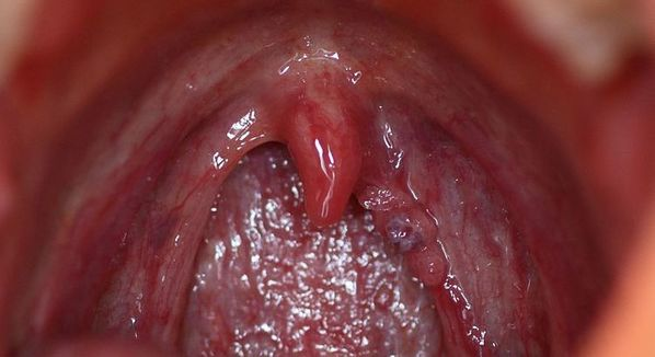 hpv cancer na boca