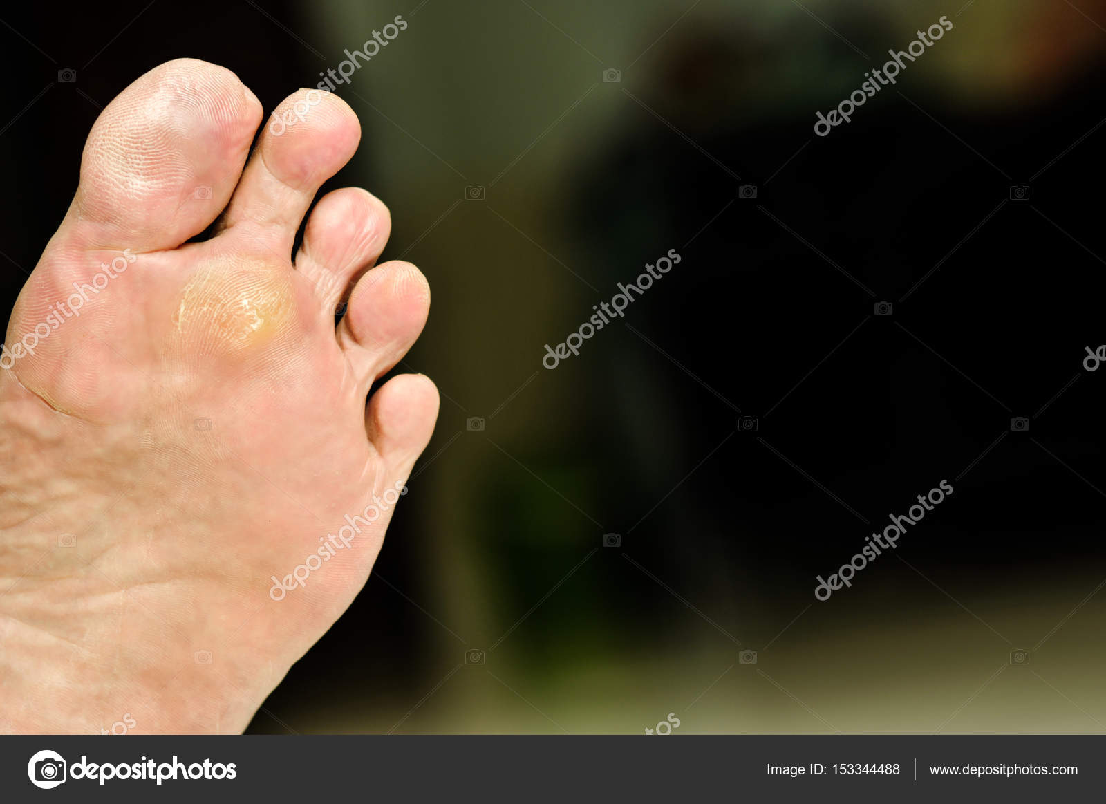 Fotografie Closeup of foot with a infected wart placed under toes 73388419