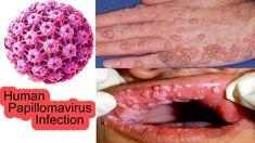 papilloma virus terapie