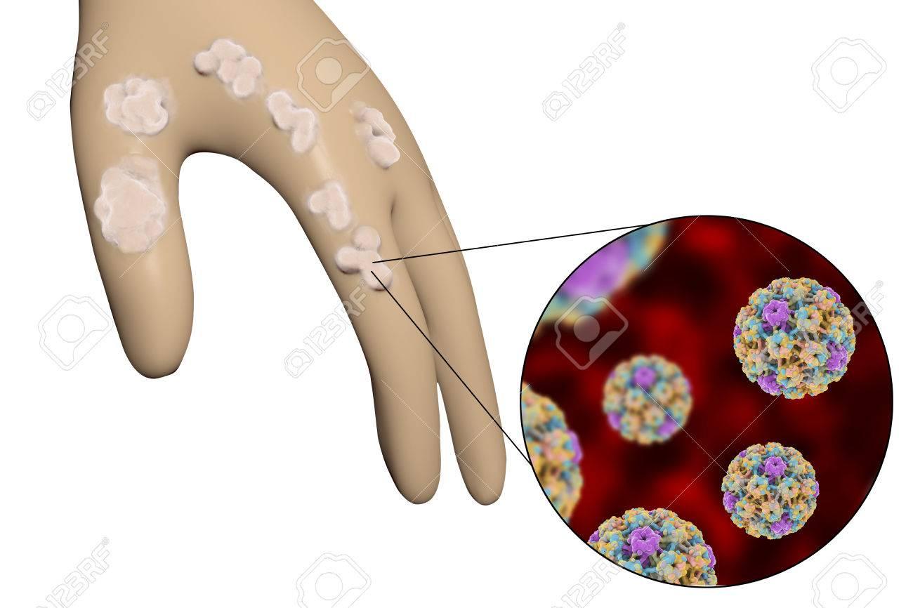 papillomavirus verrue main
