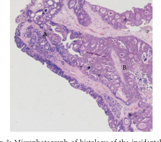 papillomatosis cutis carcinoides cancer mamar evolutie