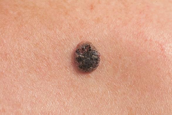 se vindeca cancerul de piele