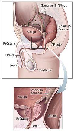 PSA ( Antigen specific prostatic )