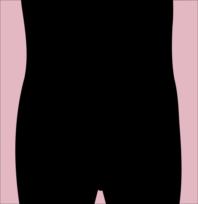 cancer gros intestin stade 3