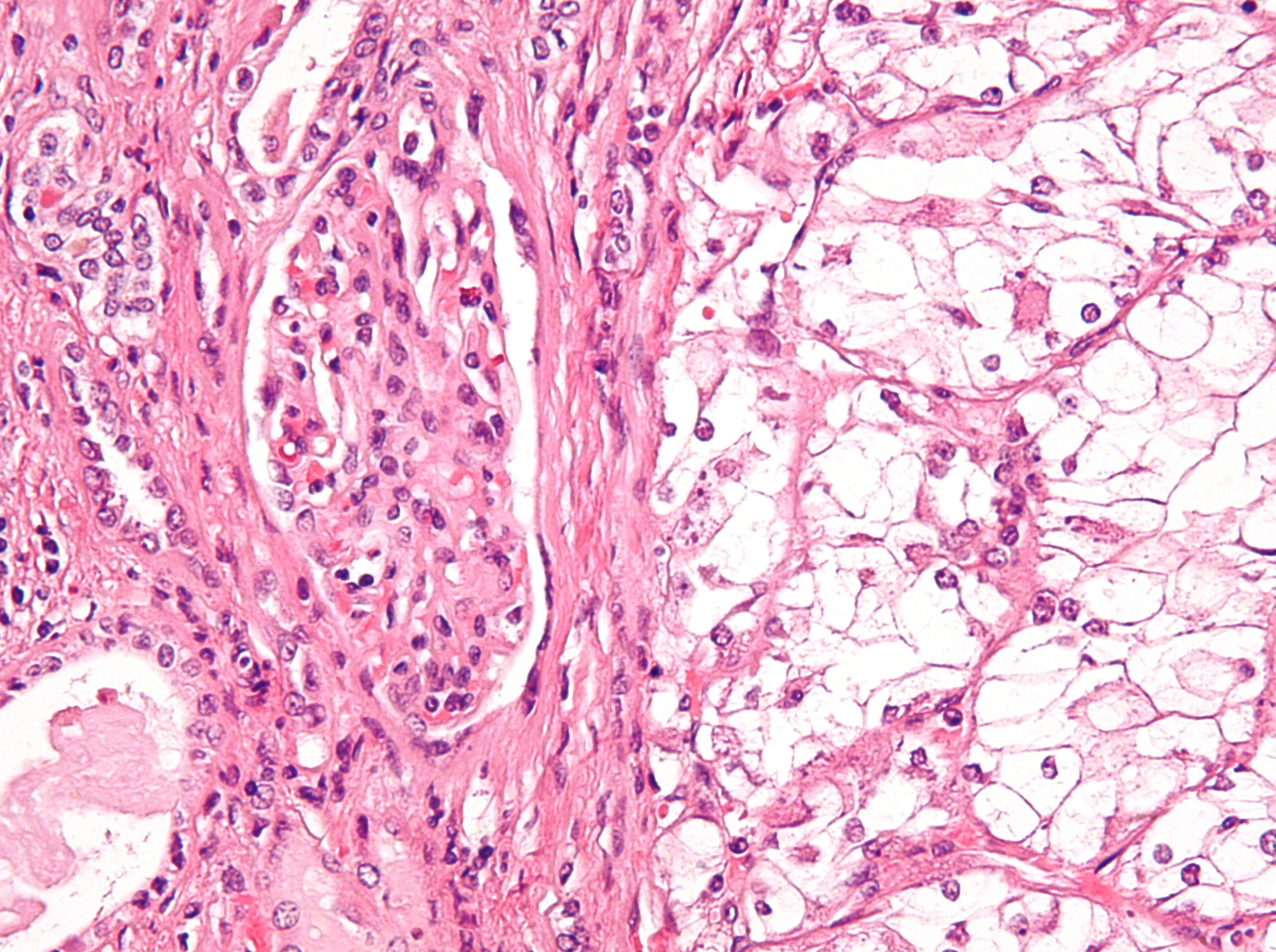 cancer renal c64