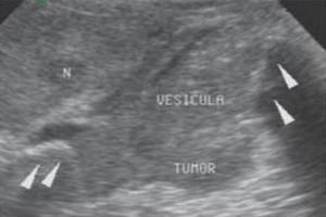 cancer vesicula biliar metastasis