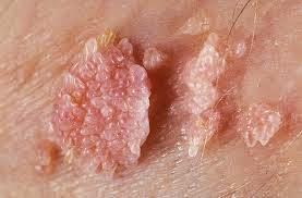 penyakit hpv pada laki laki cancer la gura simptome