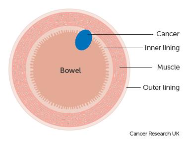colorectal cancer dukes staging cancer colon vitesse sedimentation