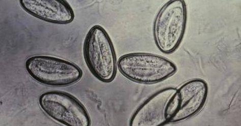 plante pentru dezintoxicarea organismului