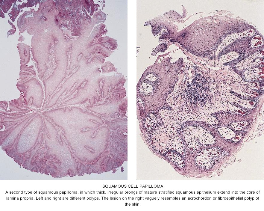 esophageal squamous papilloma hpv