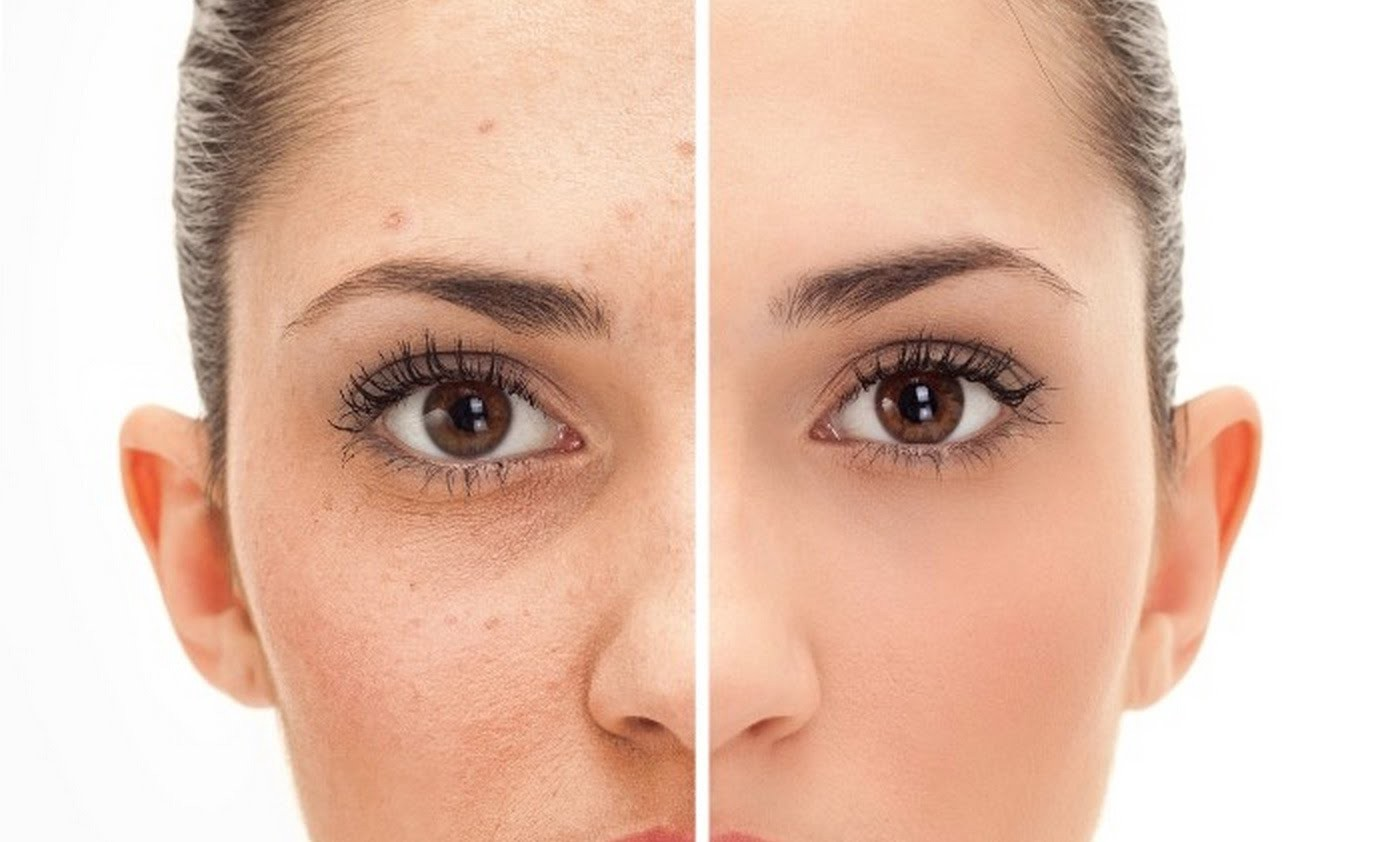 32 Best ALLERGIES AND EYE ILLNESSES images   Stye treatment, Eye stye remedies, Stye remedy