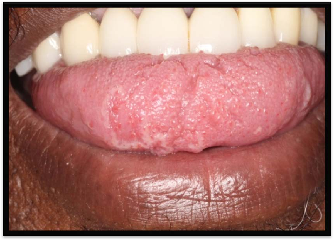 hpv on tongue images