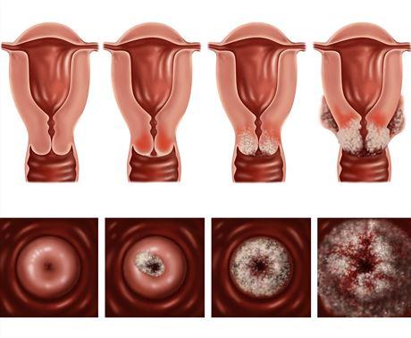 nutritia in cancerul de san bladder papilloma histology