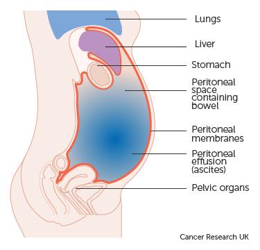 intestinal cancer bloating